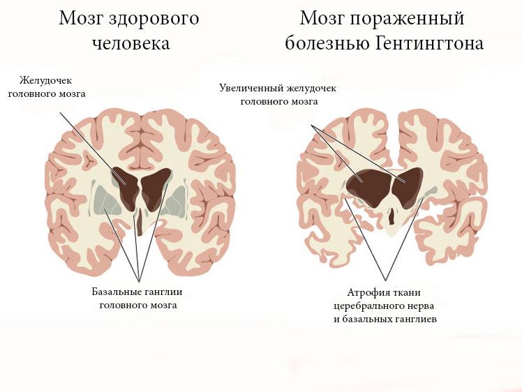 Симптомы болезни Гентингтона